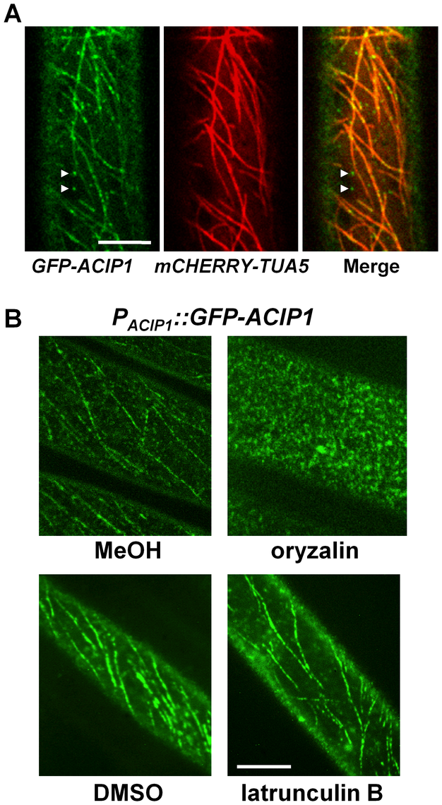 GFP-ACIP1 co-localizes with microtubules.