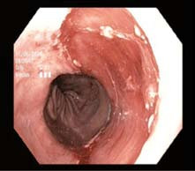 Spodina po endoskopické resekci. Fig. 4. Resected area after endoscopic resection