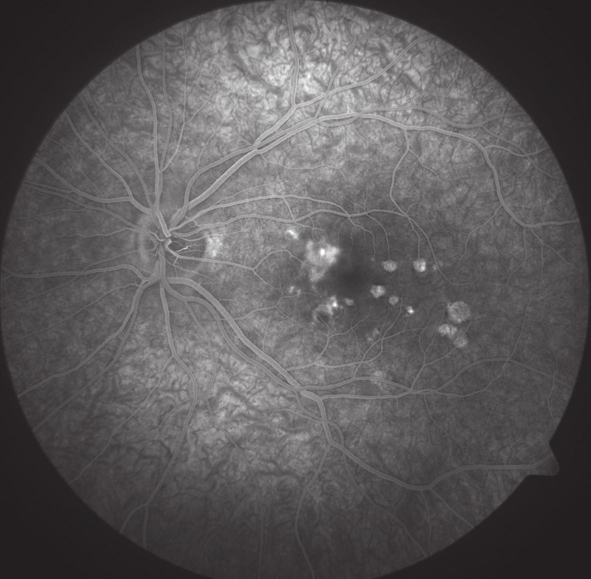 FAG oka levého. Gradující hyperfluorescence v místě akutního ložiska nasálně od foveoly