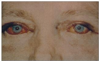 Mimokostní kalcifikace ve spojivkách, tzv. syndrom červených očí.