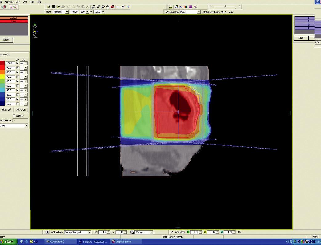 Plánovací CT vyšetření – předoperační ozáření karcinomu rekta cT3 NO MO – sagitální rovina