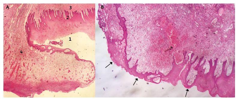 Transverzální řez distálního jícnu v místě resekční plochy s protekcí Xe-Dermou<sup>®</sup> (Hematoxilin-Eosin): A. 1. vrstevnatý dlaždicový epitel nerohovějící – povrchová vrstva s jádry, 2. epitel vrstevnatý dlaždicový nerohovějící – vrstva bazální, 3. tunica submucosa, 4. fibrinózně hnisavý exsudát s granulační tkání (součást hojení). B. Šipky ukazují re-epitelizaci přes submukózu. Fig. 2. Transversal incision of distal oesophagus at the resection site with Xe-Derma cover<sup>®</sup> (Haematoxylin-Eosin): A. 1. non-keratinized stratifi ed squamous epithelium – the superficial layer, 2. non-keratinized stratified squamous epithelium – the basal layer, 3. tunica submucosa, 4. fi brinous-purulent exudate with granulation tissue (as a healing component). B. The arrows show the re-epithelialization over submucosa.