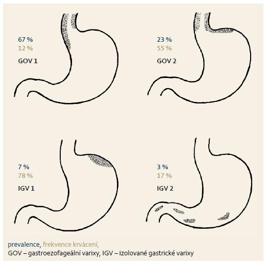 Klasifikace žaludečních varixů dle Sarina et al [74]. Fig. 1. Classification of gastric varices according to Sarin et al. [74].