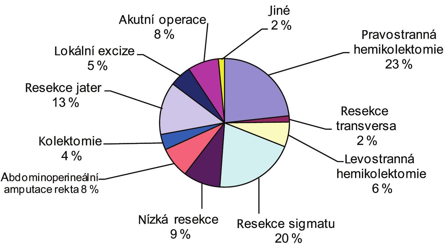 Spektrum operačních výkonů pro CRC 2001