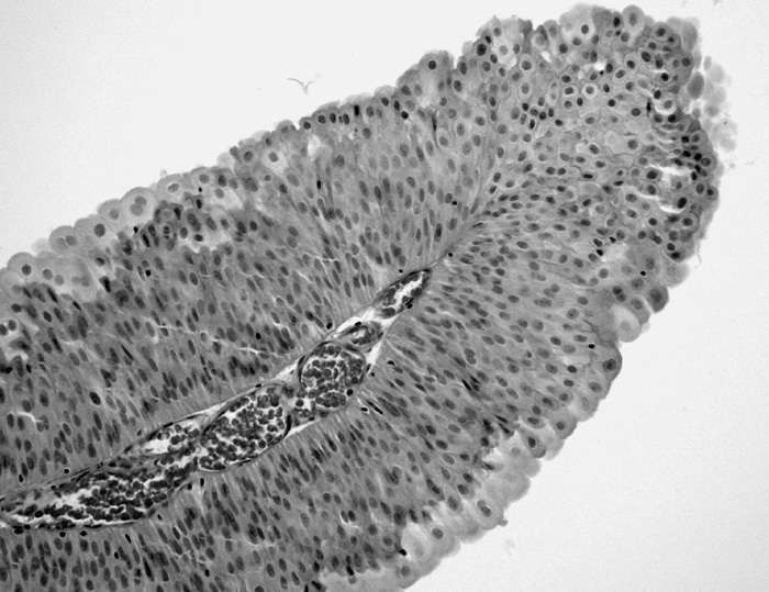 PUNLMP. Pravidelný urotel na jemných papilách vykazuje pouze mírně vyšší počet vrstev. Diferenciace do povrchových buněk (HE, 100krát)