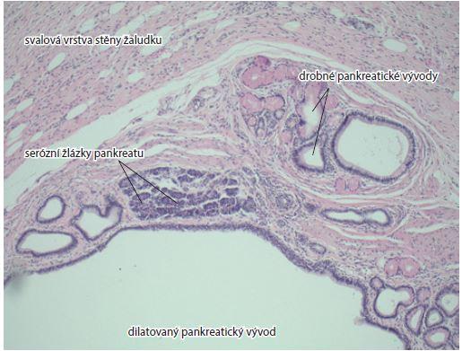 Svalová vrstva žaludeční stěny, pankreatické acini, malé a dilatované vývody. Barvení hematoxylin-eozinem, zvětšení 10×.<br> Fig. 3. Musculous layer of gastric wall, pancreatic acini, small dilated ducts. Haematoxylin and eosin staining, magnification 10×.