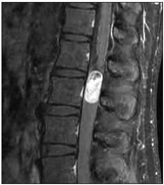 MR, T1 vážený obraz, sagitální rovina. Paragangliom intradurální na etáži L1–L2, hyperintenzní tumor po podání kontrastu.