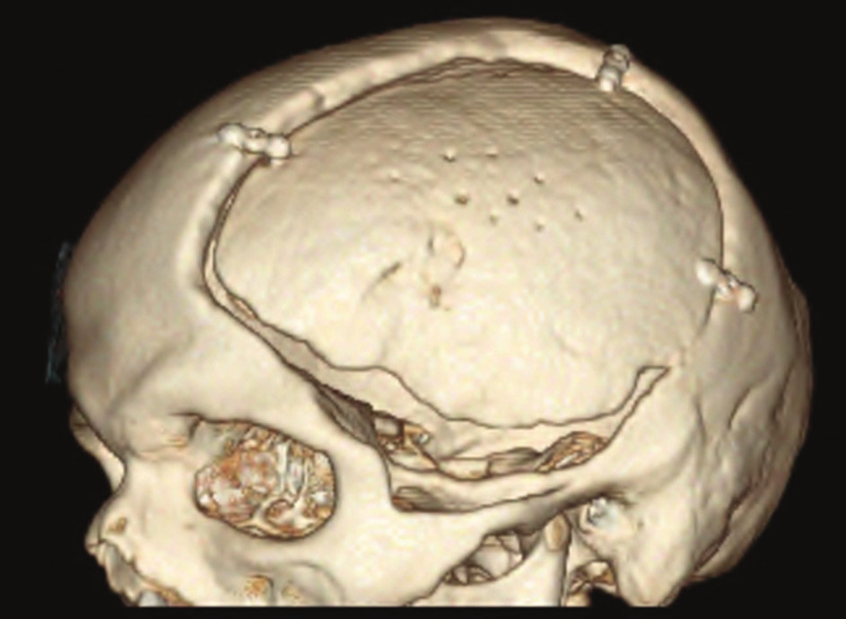 3D model lbi − kranioplastika vlastní kostí