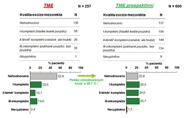 Tab. 3, Grafy 10: Kvalita excize mezorekta dle počtu, četnosti a údobí v celé sestavě Tab. 3, Graphs 10: Quality of mesorectal excisions according to the number, frequency and period for the full patient set