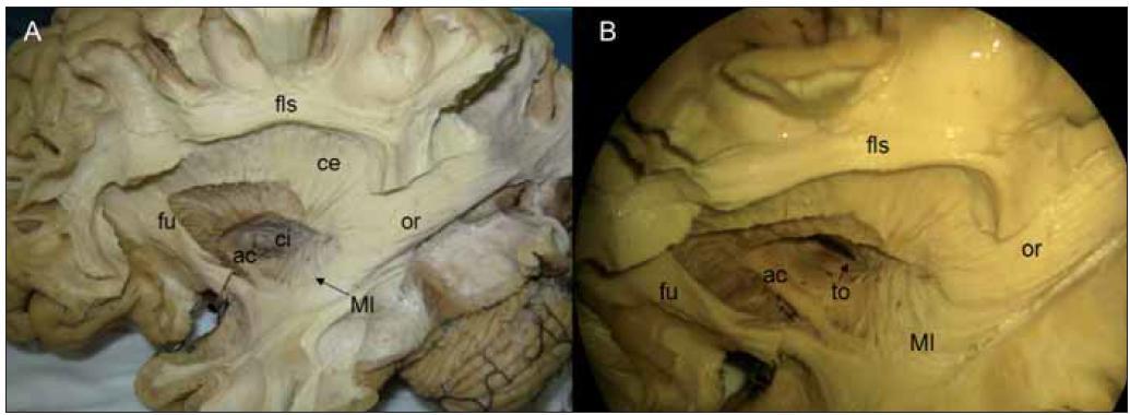 Obr. 4a. Disekce zaměřující se na ventrální část tzv. Flechsig-Meyerovu kličku (Ml) zrakové dráhy a vlastní radiatio optica (or) po odstranění části fasciculus uncinatus (fu) a celého fasciculus fronto-occipitalis, capsula interna (ci) je v oblasti svého vstupu do mozkového kmene transverzálně proťata, nad řezem jsou zachována její vlákna za putamen. Obr. 4b. Pohled šikmo shora nám krom výše uvedených struktur ozřejmuje také tratctus opticus (to) mediálně od commissura anterior (ac), ostatní popisky odpovídají předchozím obrázkům.