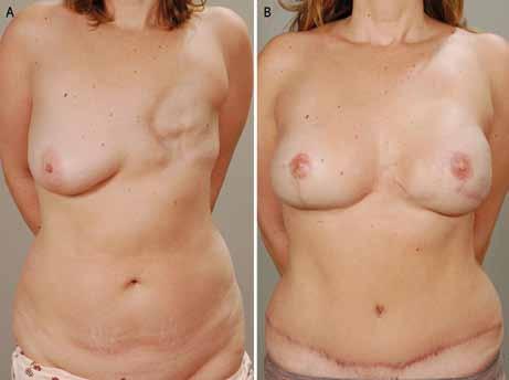A. BRCA-pozitivní pacientka po léčení levého prsu mastektomií (skupina B); 4B. Po profylaktické, kůži šetřící mastektomii s pexí pravého prsu a okamžité rekonstrukci obou prsů DIEP laloky.