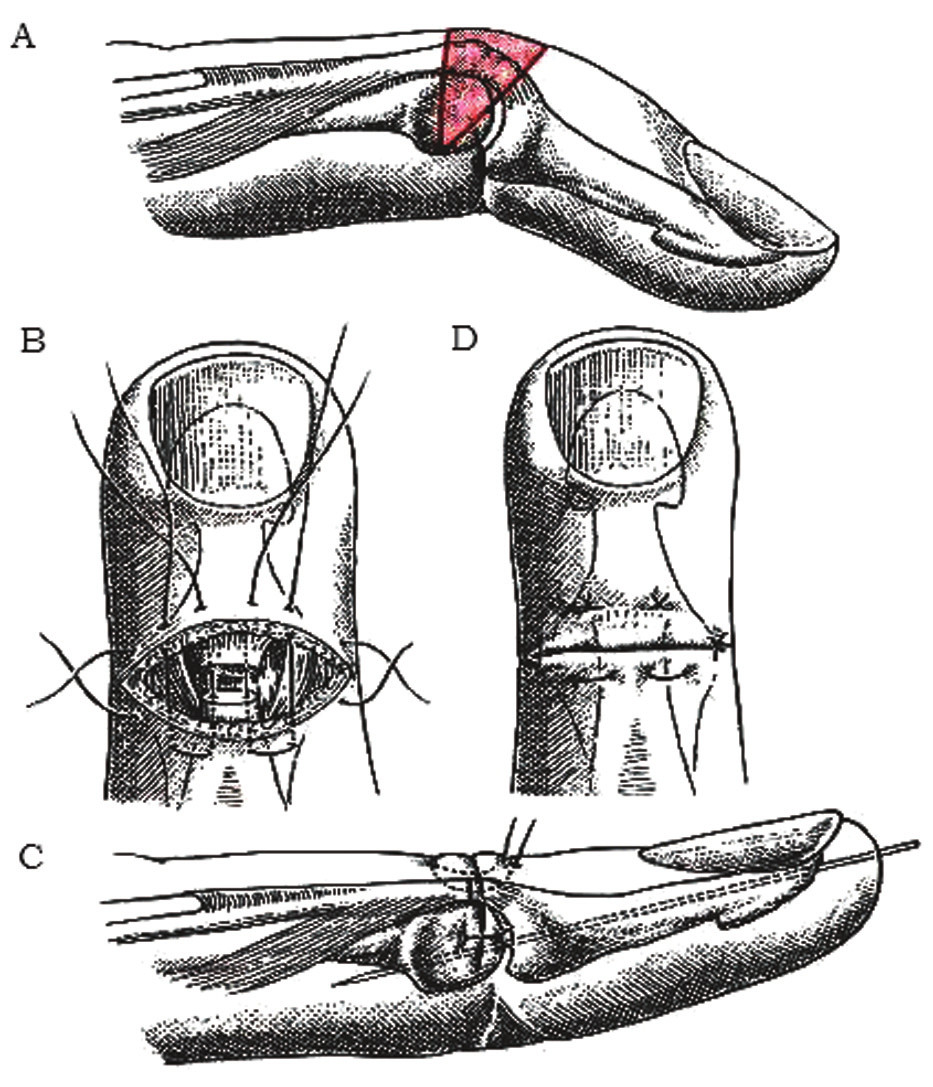 Korekcia chronickej mallet deformity a) excízia kože a šľachového kalusa, b) naložené matracové stehy en bloc cez kožu, šľachu a ev. kĺbové puzdro, c) transfixovaný DIP kĺb Kirschnerovým drôtom v miernej hyperextenzii, d) zauzlenie stehov [2]. Fig. 7: Correction of chronic mallet deformity a) excision of skin and tendon callus, b) placing the matrace sutures en bloc through the skin, tendon and ev. articular capsule, c) K-wire fixes the DIP joint in slight hyperextension, d) sutures are tied [2].
