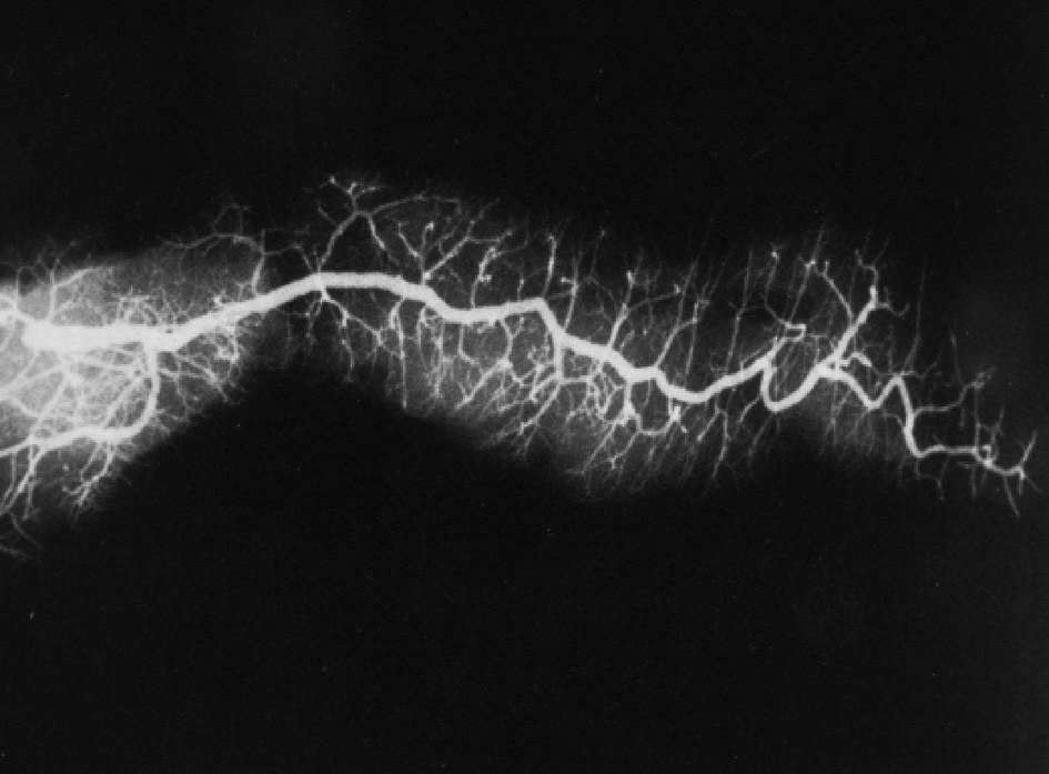 Postmortem zobrazený pankreatický vývod s větvením sekundárních i terciárních větví