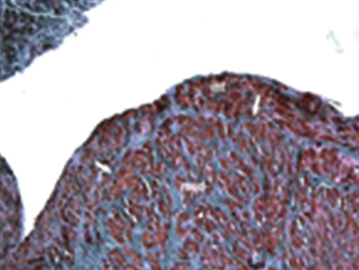 Detail šikmého průřezu žilou po ošetření RFA  Cévu v celém rozsahu vyplňuje vazivově změněný trombus (+). Tunika intima (int) i media (med) jsou značně ztluštělé. Barvení orceinem. Zvětšení 10x5. Detail trombu s angiogenezií. Barvení Van Gieson. Zvětšení 10x40. Fig. 6: Detail of oblique cross-section of vein following RFA treatment The whole scope of the vessel is filled by thrombus changed into connective tissue (+). Tunica intima (int) and media (med) thickened significantly. Dyed with orcein, margnification 10x5. Detail of the thrombus, blood clot is here and there with angioneogenesis. Dyed by Van Gieson, magnification 10x40.