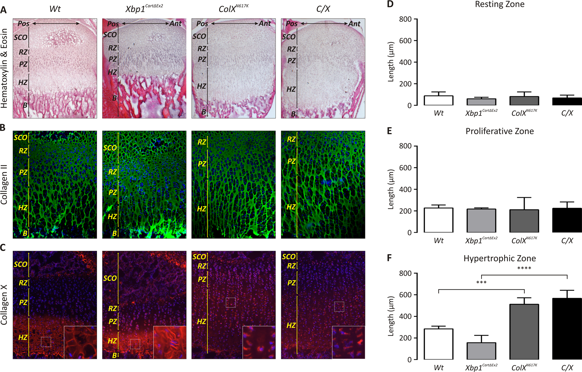 Ablation of XBP1 does not significantly affect the MCDS phenotype in <i>C/X</i> mice.