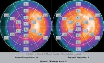SSS-, SRS- a STSS-skóre – tzn. diferenční skóre.