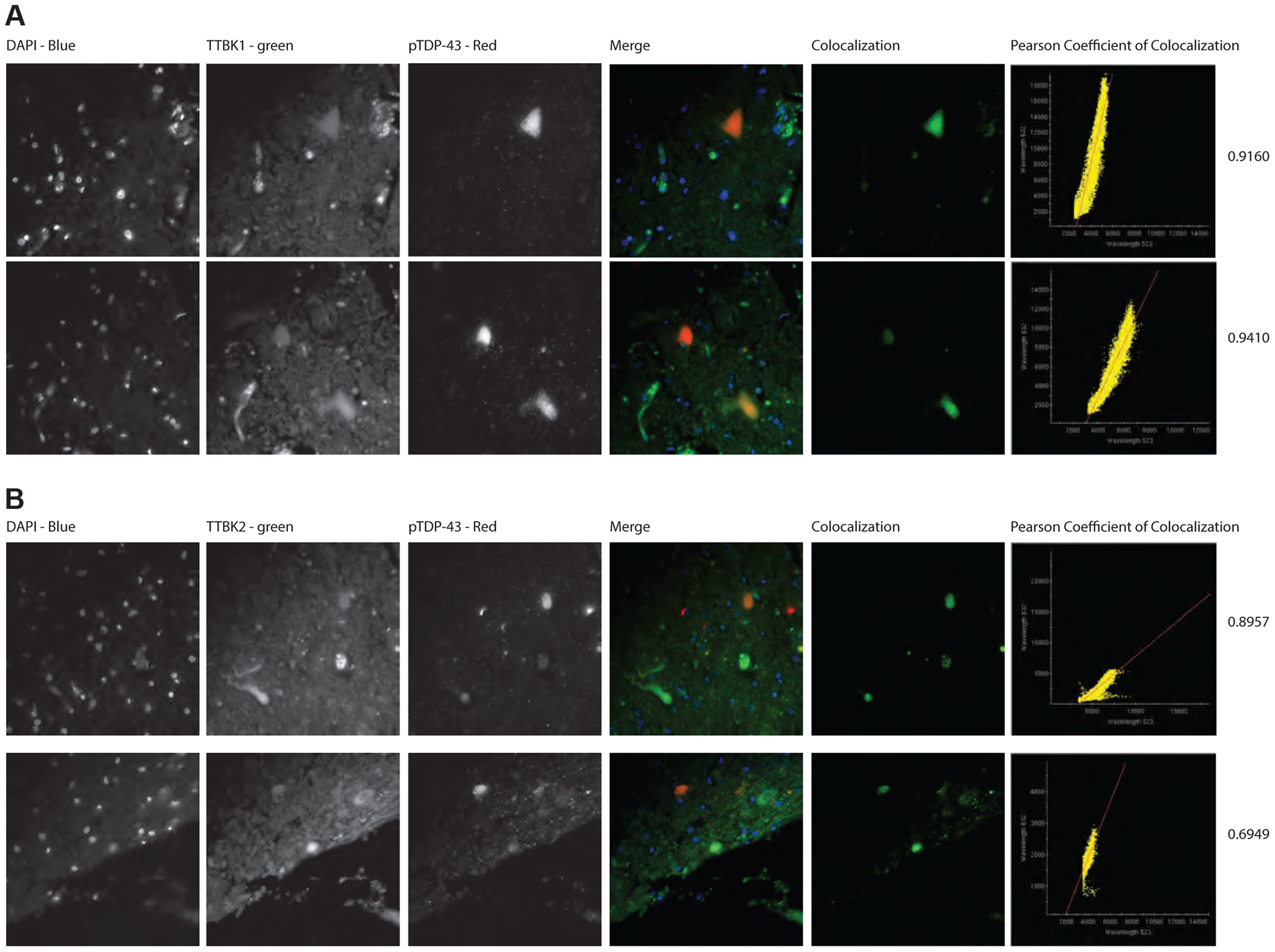 TTBK1/2 co-localize with phosphorylated TDP-43 in ALS spinal cord aggregates.