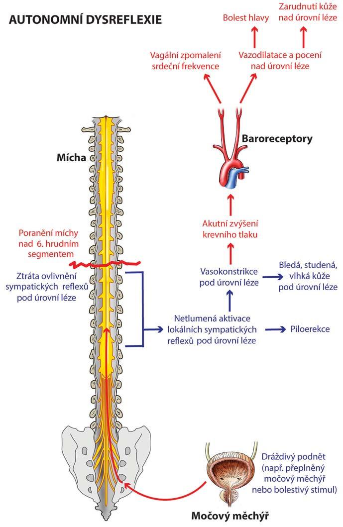 Schéma patofyziologie autonomní dysreflexie.