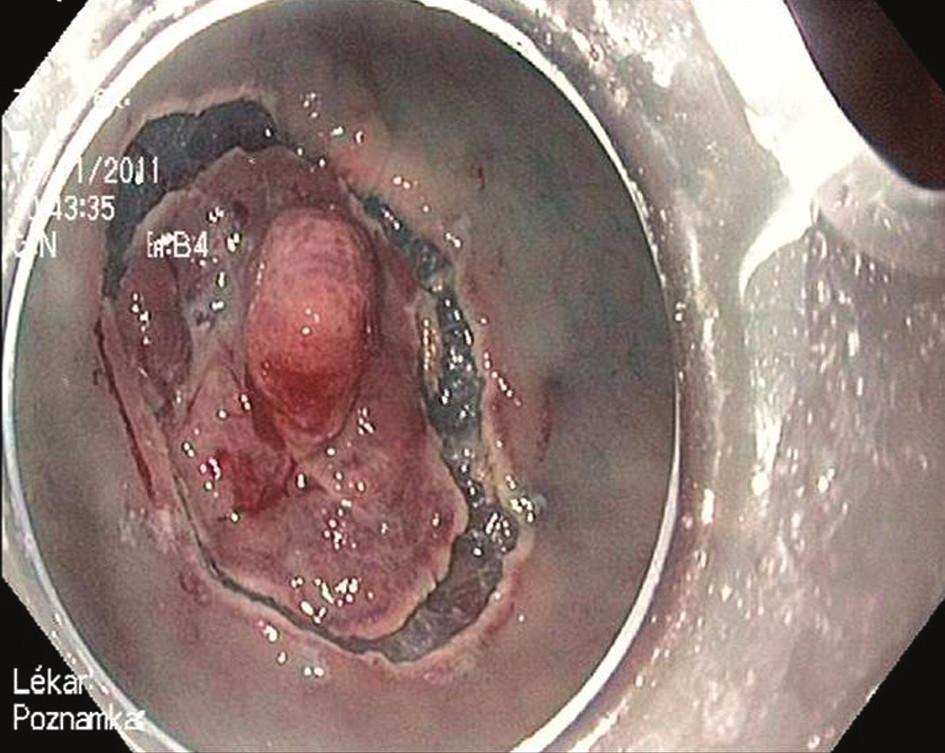 Endoskopická submukózní disekce: Cirkulární incize