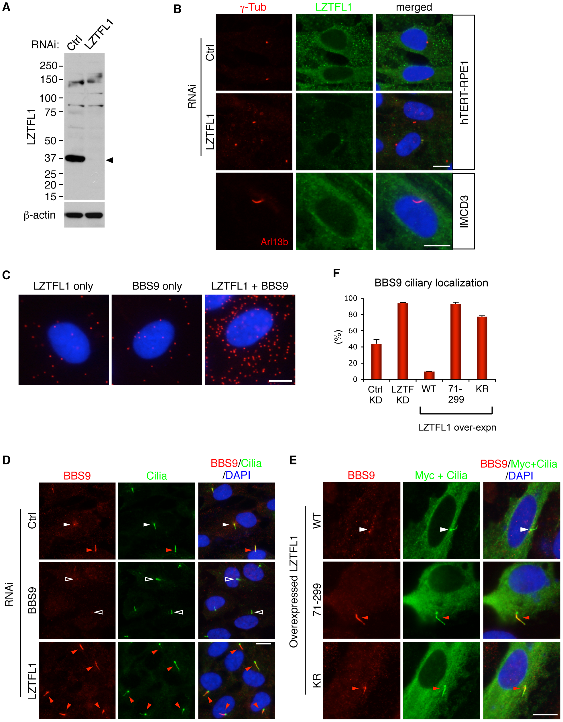 LZTFL1 regulates ciliary trafficking of the BBSome.