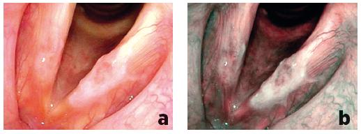 Porovnání zobrazení plošné leukoplakické léze levé hlasivky při flexibilní endoskopii bílým světlem (a) a při NBI endoskopii (b) – v NBI endoskopii viditelný větší plošný rozsah léze, patologická vaskularizace Typ Va zjištěna nejen na levé, ale také na pravé hlasivce, histologicky prokázán carcinoma in situ na obou hlasivkách.