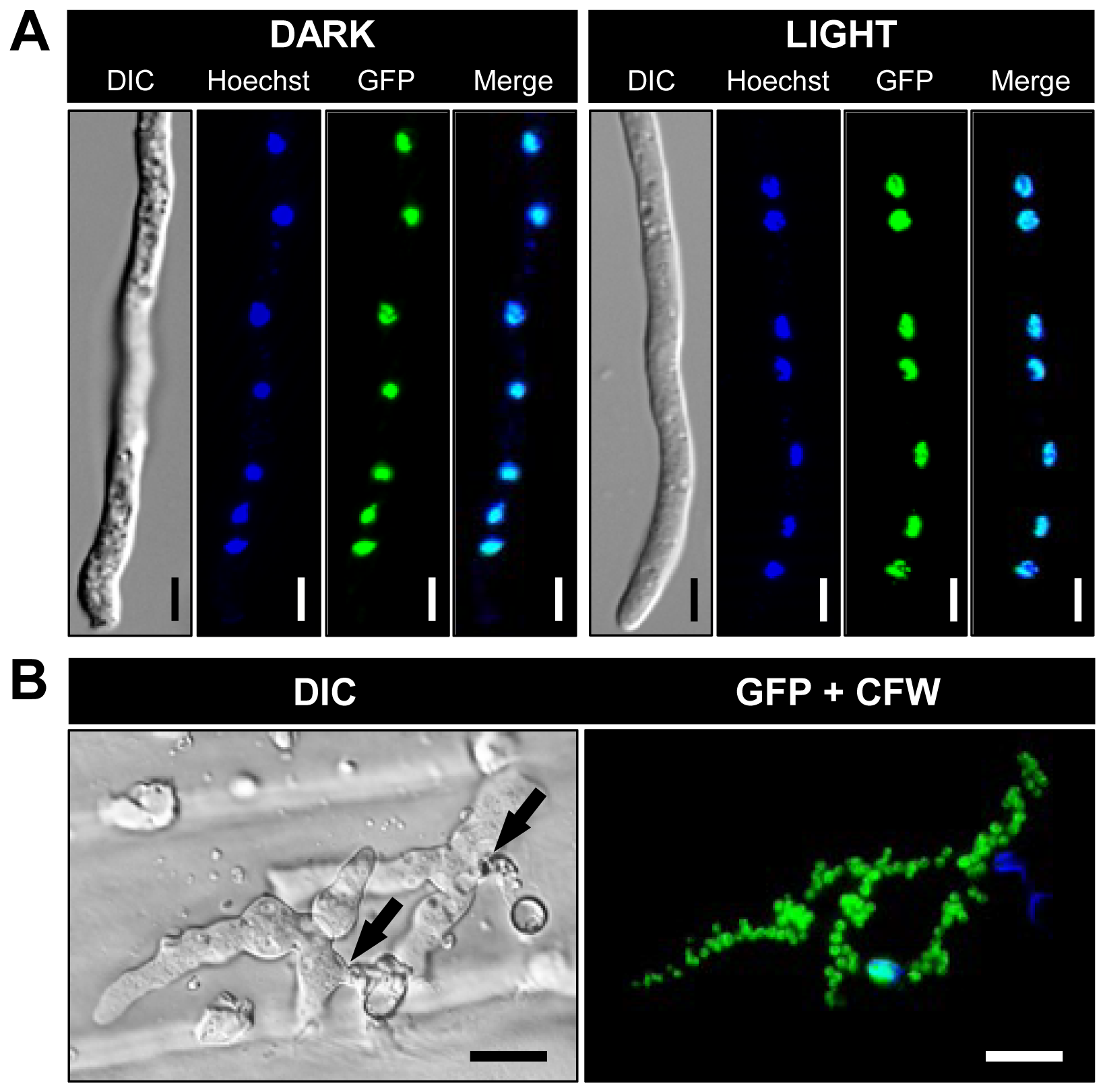 BcLTF1-GFP fusion proteins are localized in the nuclei.