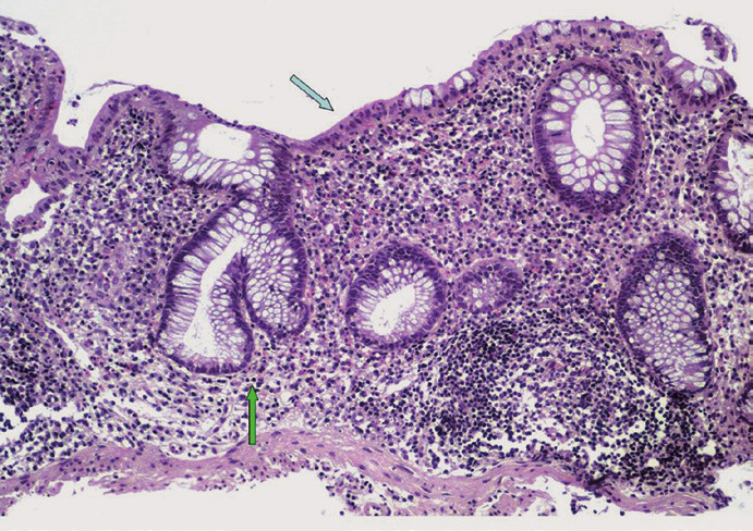 Histologický obraz PSC-IBD. Narušená slizniční architektonika s větvením a zkrácením Lieberkühnových krypt (bílá šipka), s nečetnými neutrofilními leukocyty mezi epiteliemi povrchové výstelky (černá šipka), chronický zánětlivý infiltrát v lamina propria mucosae (hematoxylin-eozin, původní zvětšení ×100). Fig. 2. Histopathological features of PSC-IBD. Mild chronic active colitis characterized by architectural distortion of the intestinal mucosa with branched and shortened crypts (white arrow); neutrophils are focally present within the lamina propria and surface epithelium (black arrow); the lamina propria is expanded by chronic inflammatory infiltrate (hematoxylin-eosin, original magnification ×100).