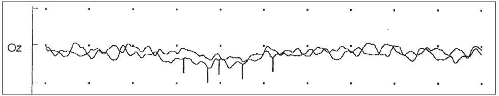 Vyšetření vizuálních evokovaných potenciálů s nehodnotitelnými amplitudami a latencemi evokované odpovědi ze stimulace téměř slepého levého oka (totéž při stimulaci oka pravého).