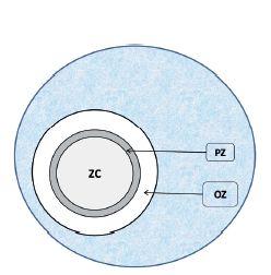 Schéma 1. Kruh vyznačuje zorné pole v objektíve - reaktívny lymfatický folikul v sliznici GIT-u.