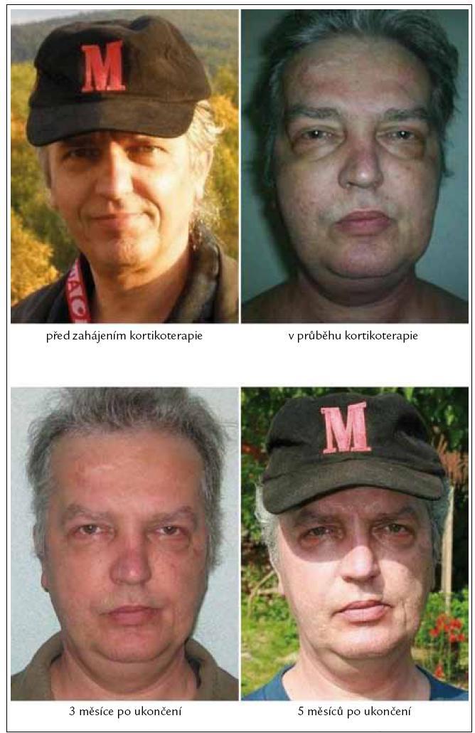 Změny koloritu pacientova obličeje před, v průběhu a po ukončení kortikoidní léčby. Fotografická dokumentace této kazuistiky je publikována s písemným souhlasem sledovaného pacienta.