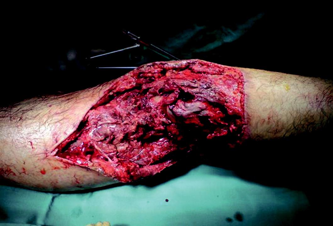 Otevřená zlomenina pravé dolní končetiny ošetřená zevní fixací.