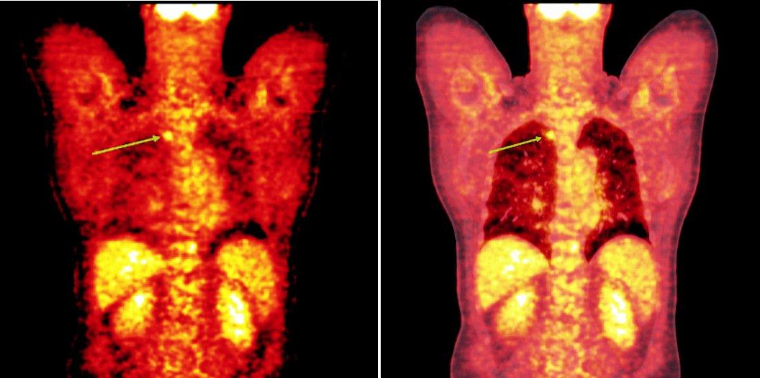 Srovnání snímků pozitronové emisní tomografie (s použitím 18F-fluoro-deoxy-glukózy) (a) a integrované pozitronové emisní tomografie s počítačovou tomografií (b) po skončení léčby 90Y-ibritumomab tiuxetanem u třetího pacienta s folikulárním lymfomem a nálezem ložiska v plicním parenchymu.