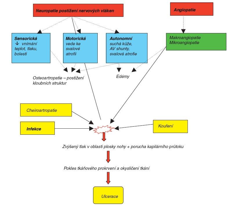Schéma 1. Patogeneze rozvoje diabetických ulcerací.