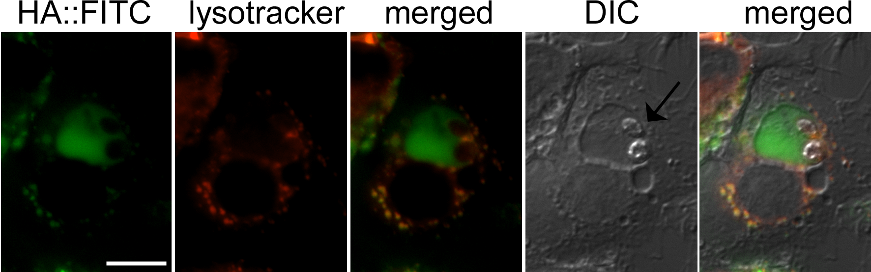 Hyaluronan localization to the <i>Leishmania</i> containing phagolysosome.