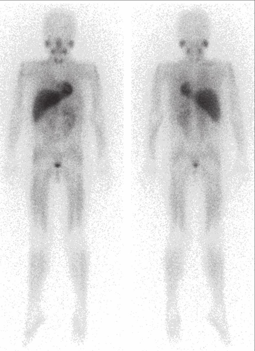 Celotelové <sup>123</sup>I-MIBG. Bez patologického nálezu. [13.02.2014]