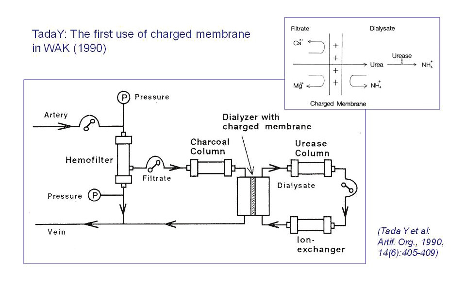 Fig. 4: Haemofiltration-based WAK of Tada and co-workers (Tokyo, 1990): Primary circuit – generation of filtrate in a conventional haemofilter;  Secondary circuit – recirculation of filtrate via charcoal and a special dialyzer with highly positively charged membrane allowing diffusional passage of only electroneutral solutes (urea) to the Tertiary circuit – low volume dialysate recirculation via urease (conversion of urea into ammonium aions) and an ion-exchanger (removal of ammonium ions).