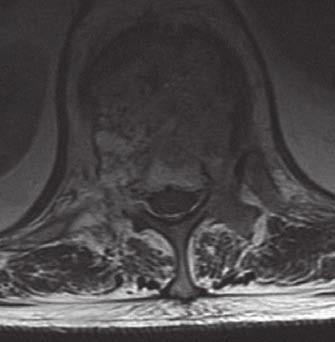 MR T2W obraz AHO Th12 s postižením pravého pediklu a laminy, s kompresí míšní při prorůstání tumoru do páteřního kanálu.