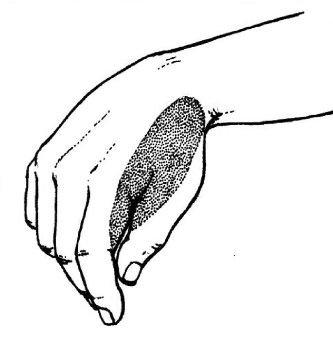 """Léze n. radialis na paži. Paréza radiální i dorzální skupiny svalů předloktí – """"dropping hand and dropping fingers"""", ruka i prsty přepadají. Poruchy čití jsou v autonomní kožní zóně."""
