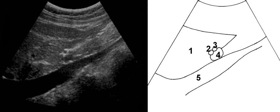 Zobrazení lig. hepatoduodenale; 1 – jaterní parenchym, 2 – ductus choledochus, 3 – a. hepatica propria, 4 – vena portae, 5 – vena cava inferior