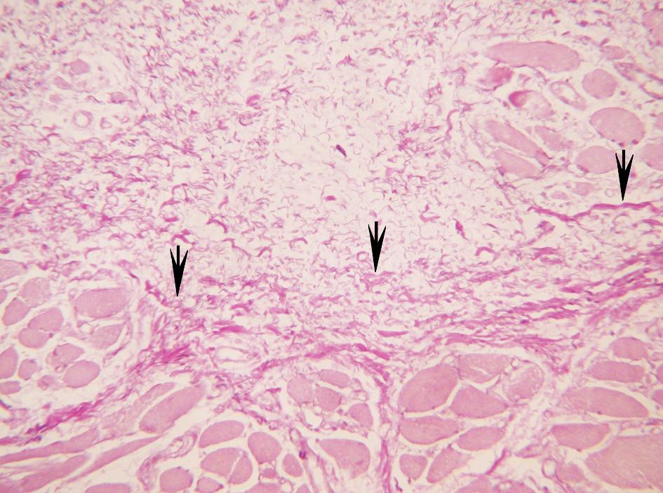 Větší koncentrace elastiky při okraji svalu v nejhlubší části lamina propria.