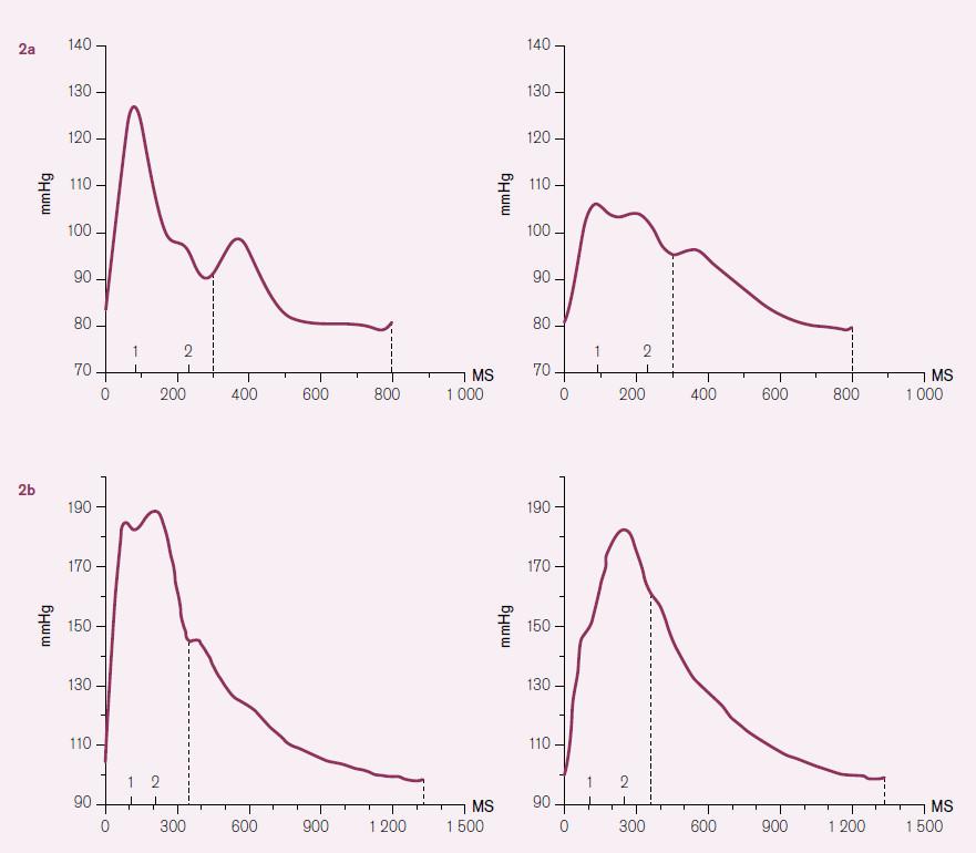 Typický tvar tlakové vlny u mladého ( obr. 2a) a staršího jedince ( obr. 2b). Grafy nalevo znázorňují tvar vlny v řečišti radiální tepny, napravo v centrálním řečišti (v aortě). U mladého jedince je druhotná vlna nízká (její vrchol je označen na ose X číslem 2) a nezvyšuje pulzní tlak ani v periferním ani v centrálním řečišti. Jedná se o křivky 22letého muže, brachiální TK je 127/ 79 mmHg, odhadnutý centrální TK 107/ 80 mmHg, vrchol odražené vlny v centrálním řečišti je o 2 mmHg pod úrovní primární tlakové vlny. U staršího jedince může odražená vlna mírně navyšovat pulzní tlak v periferním řečišti, ale k mohutnému navýšení dochází především v centrálním řečišti. Na obrázku 2b jso u křivky 78leté ženy, brachiální TK je 188/ 98 mmHg, centrální TK 182/ 99 mmHg, odražená vlna navyšuje centrální pulzní TK o 32 mmHg. Vlastní pozorování.