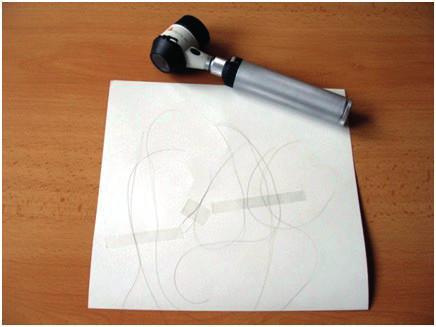 Vlasy získané trakčním testem před orientačním vyšetřením bulbu dermatoskopem