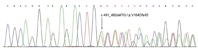 Sekvenogram části exonu 6 genu PRKAR1A. Šipka ukazuje začátek posunové mutace (delece tyminu a adeninu v pozici c.491 a c.492) vedoucí k posunu čtecího rámce a předčasnému stop kodonu.