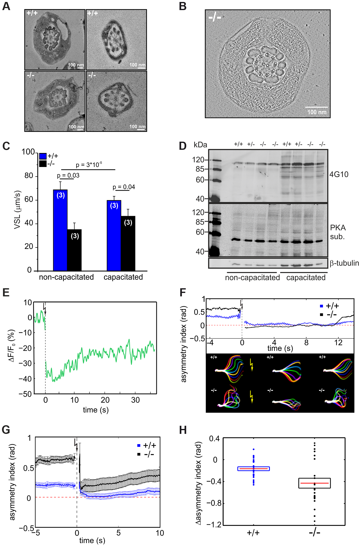 CRIS controls the development of flagellar bending.