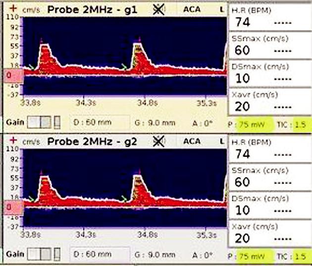 TCD záznam na a. cerebri media Zobrazuje snížené maximální rychlosti průtoku krve v systole a diastole (SSmax a DSmax) a sníženou maximální průměrnou rychlost (Xavr).