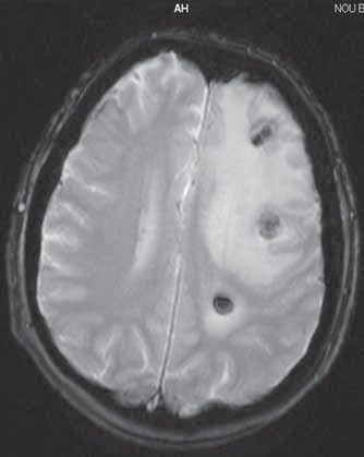 Magnetická rezonancia mozgu 13. 6. 2008.