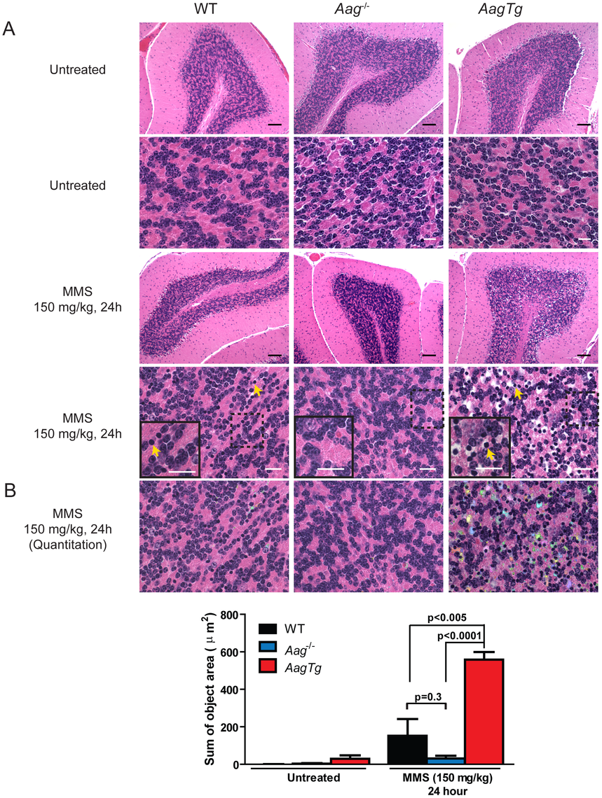 MMS induces severe cerebellar lesions <i>AagTg</i> mice.
