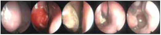 Dokumentace pooperačního hojení a efektu laserového zákroku na dolní skořepě vpravo; zcela vlevo stav před operací, zcela vpravo stav 3 měsíce po operaci.