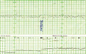 Typický kardiotokografický (CTG) záznam těžce anemického plodu ve 3. trimestru