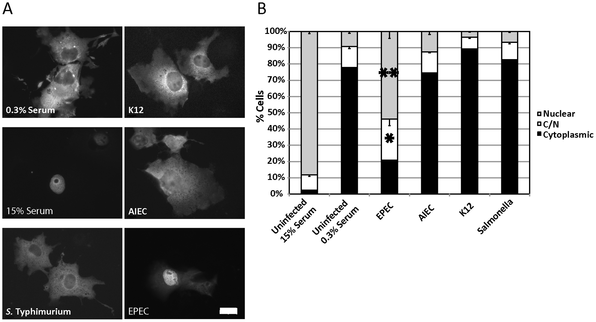 EPEC induces MAL-GFP nuclear accumulation.